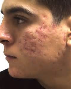 acne scars, treat acne scars, damaged skin tissue,